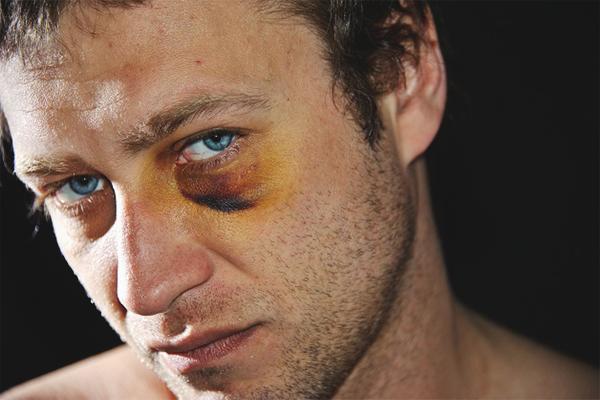 blåmärke under ögat