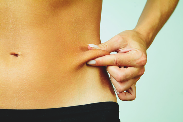 How to tighten the skin after losing weight