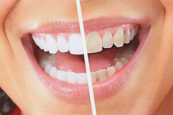 Bagaimana Untuk Menghilangkan Plak Pada Gigi Di Rumah