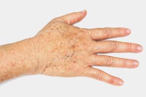 Comment se débarrasser des taches de vieillesse sur les mains