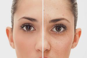 Comment se débarrasser de l'acné en 1 jour