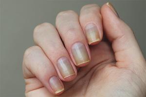 Comment restaurer les ongles après le polissage au gel