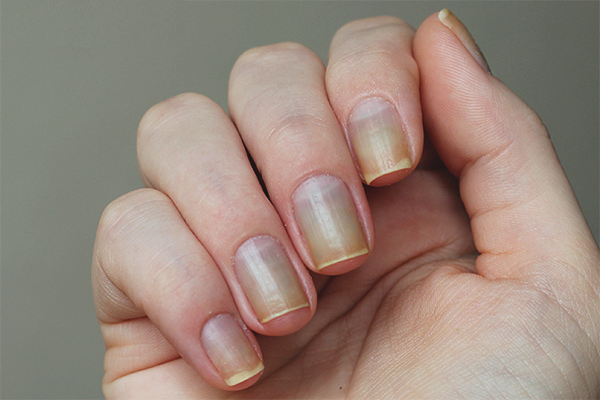 How to restore nails after gel polish