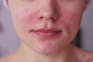 How to get rid of rosacea on the face