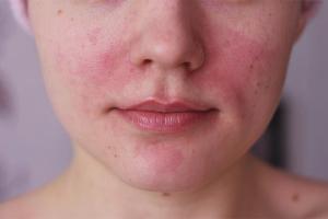 Comment se débarrasser de la rosacée sur le visage