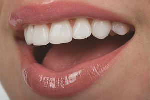 How to strengthen the teeth if they are destroyed