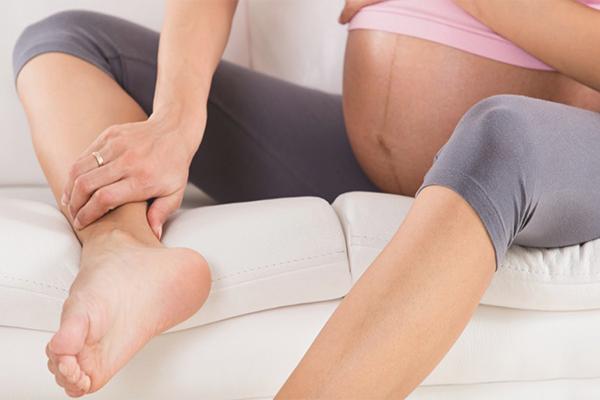 cum să preveniți varicele din picioare