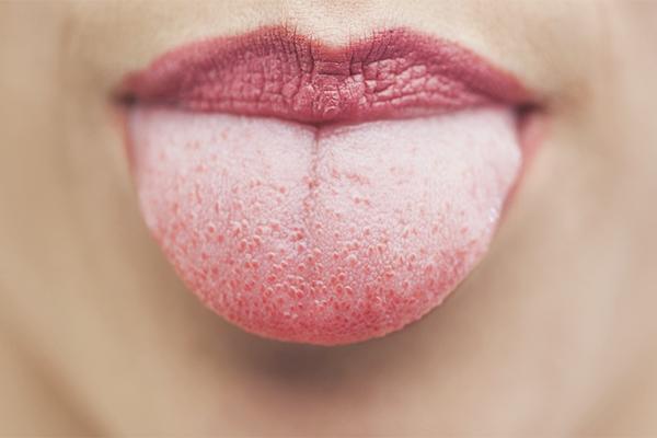 Vârful limbii doare