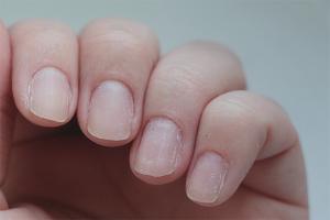 Pourquoi exfolier et casser les ongles