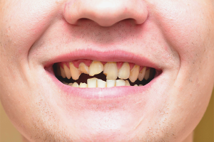 What to do if teeth crumble