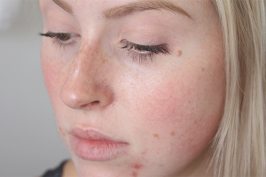 How to remove marks from acne on the face