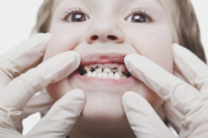 Black plaque on the teeth of a child