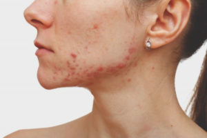 Pimples on the chin of women