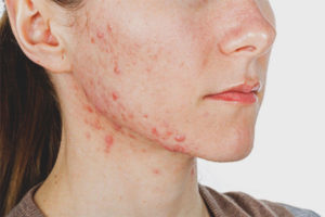 Pimples on the cheekbones of women