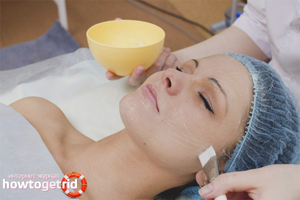 Special skin care after peeling