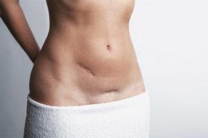 Πλεονεκτήματα και μειονεκτήματα της καισαρικής τομής
